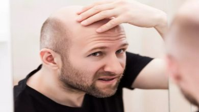 Photo of Aging, Hair Loss, and 5 Effective Treatments