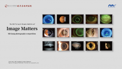 Photo of The Slit Lamp Photography Competition Sponsored by Mediworks is Successfully Held